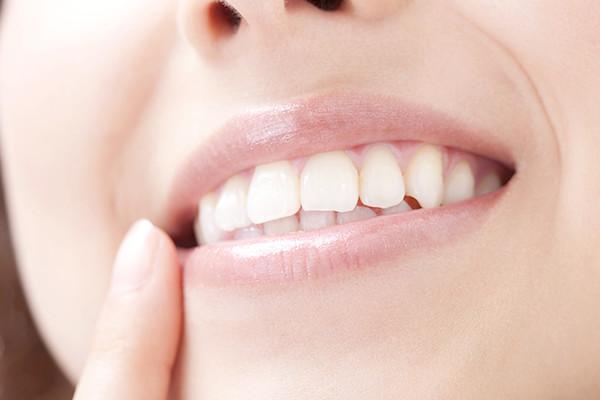 審美歯科の目的